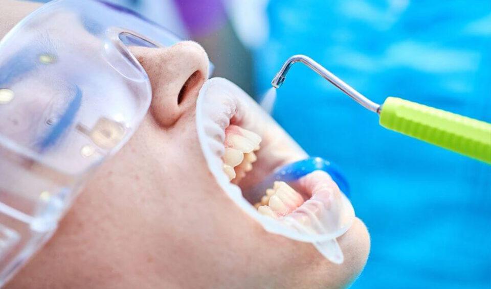 Чистка зубов Air Flow в Тамбове