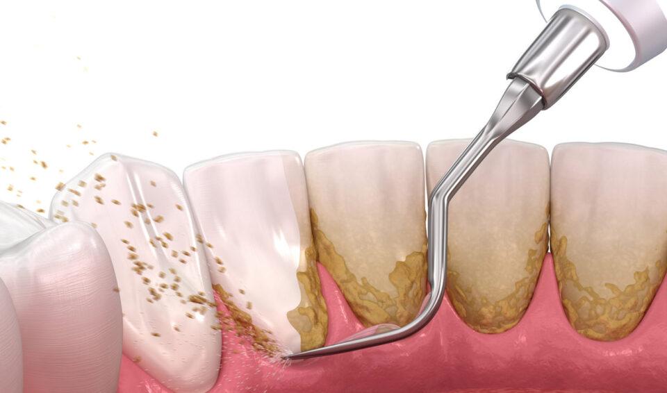 Профессиональная чистка зубов ультразвуком