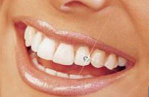 Скайсы - украшение зубов стразами - стоматология Авонстом, г. Тамбов
