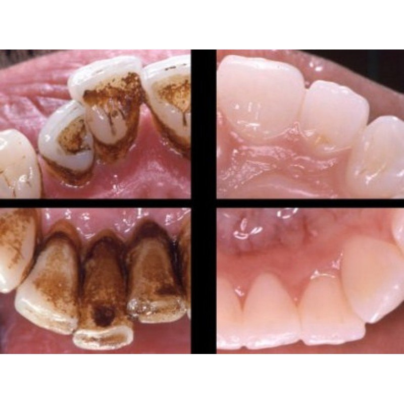 Как сделать так чтобы зуб держался дольше