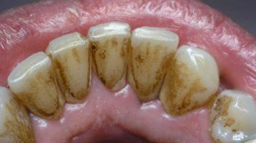 Почему появляется налет на зубах?