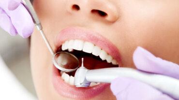 Терапевтическая стоматология: лечение зубов, пораженных кариесом, лечение зубов с некариозными повреждениями эмали, пломбирование и лечение зубных каналов.