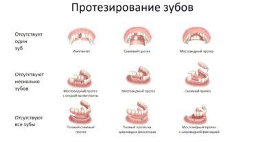 Протезирование зубов: виды, особенности, противопоказания.
